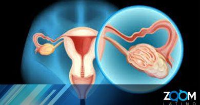 Mujeres con cáncer de ovarios pueden ser elegidas para compensación económica